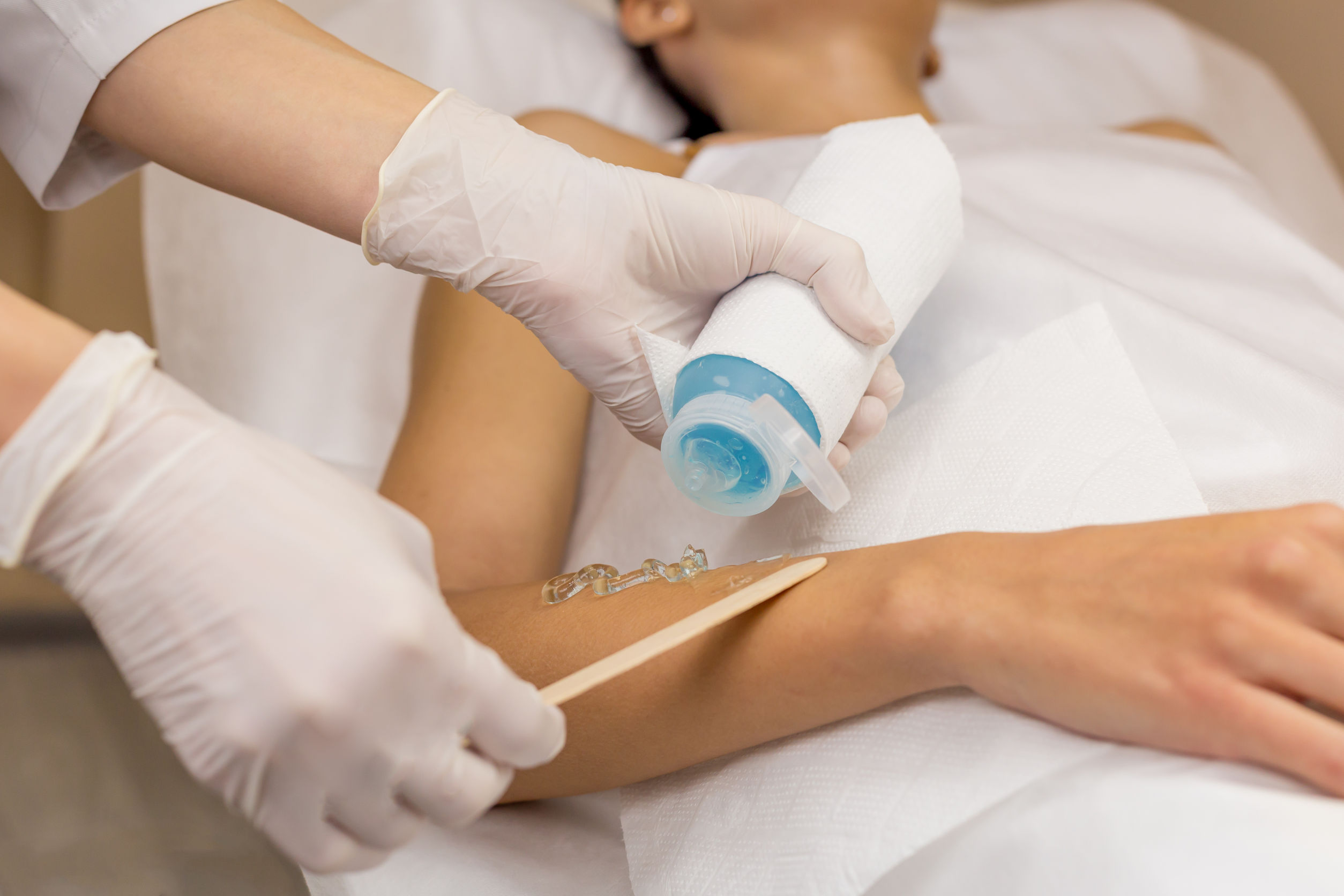47688233 - close up cooling gel for laser hair removal put on client hand with wooden spatula. client lies on table in white towel. beautician in white sterile gloves.